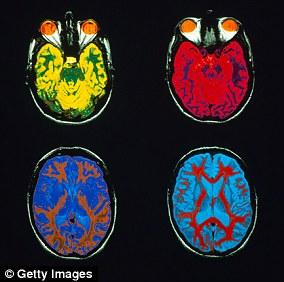The cerebral cortex coats the cerebrum and cerebellum's surface. File photo